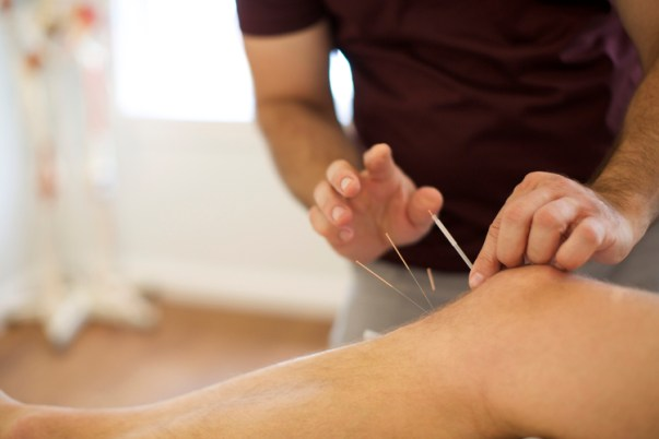 Sports Injuries Acupuncture