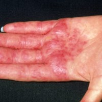 Homeopathy for Eczema