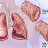 BRONCHITIS AND BRONCHIAL ASTHMA - Homeopathic Treatment