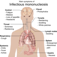 Mononucleosis - Homeopathic Treatment