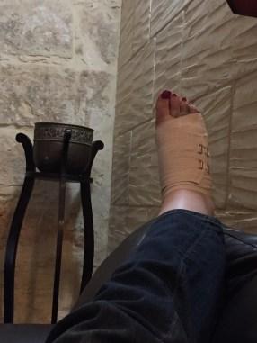 Fractured Foot Gozo