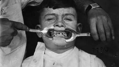 Your Dentist Sucks