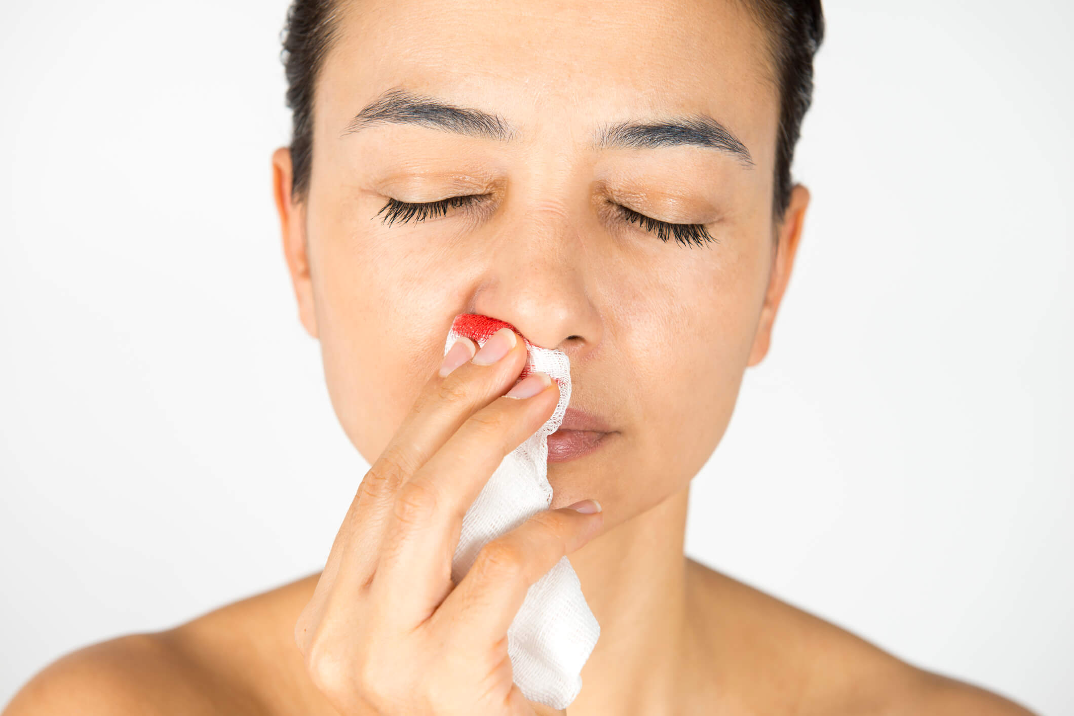 What You Need To Know About Nosebleeds