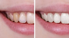 Photoshop Tutorials: How to Whiten Teeth in Photoshop