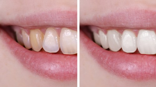 Whiten-Teeth-Thumbnail