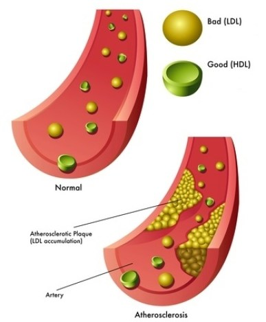 How to Lower Cholesterol Naturally HDL