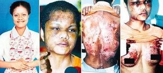 The horrific injuries inflicted on Nirmala Bonat by Yim Pek Ha in 2004