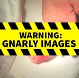【観覧注意】リンジー・ローハンが左手の薬指が切断された生々しすぎる写真公開(現在は削除)