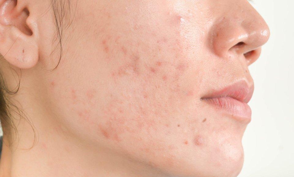 mallorca akne wichtige tipps zum