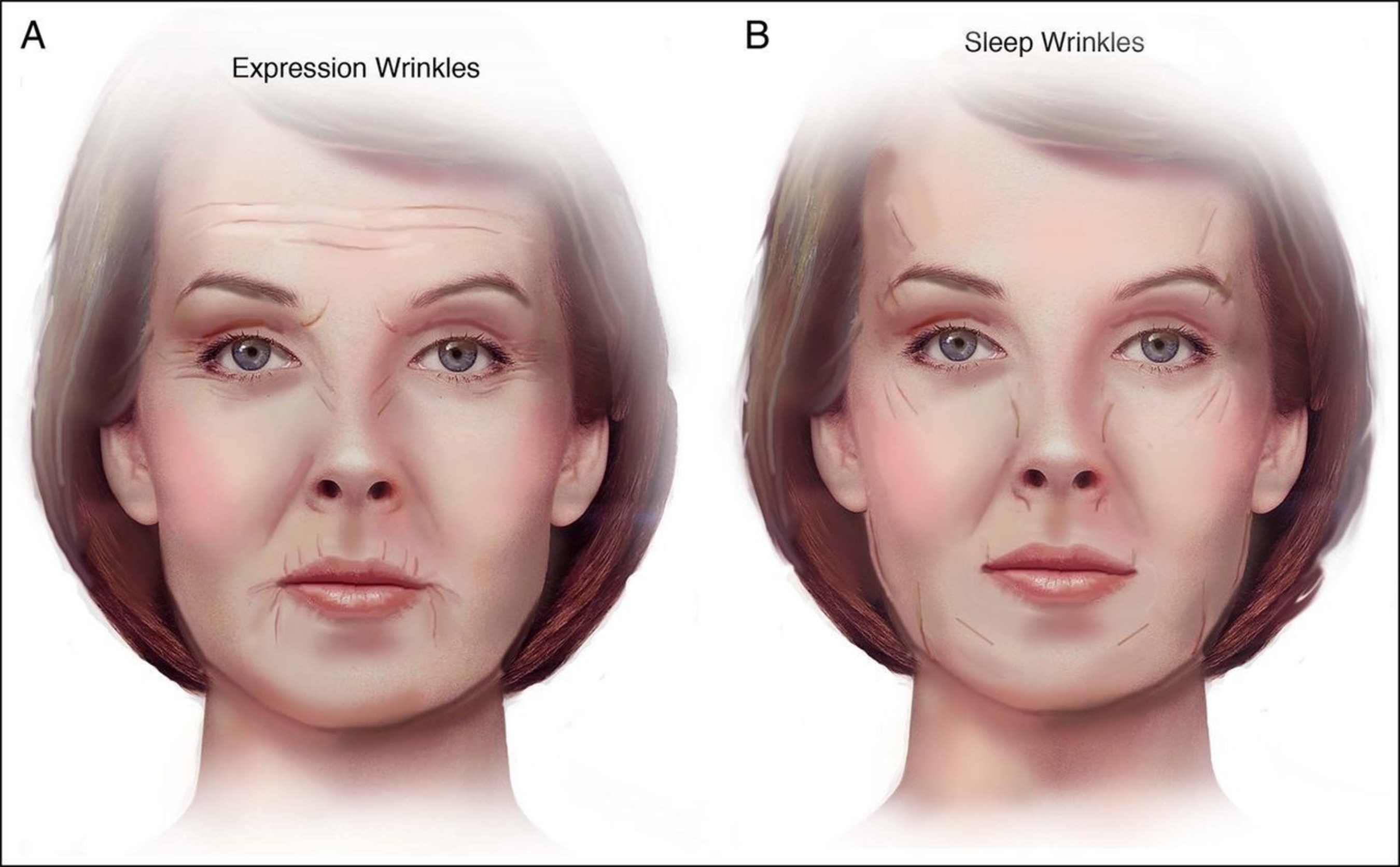 study shows stomach and side sleeping positions cause facial distortion and wrinkles over time