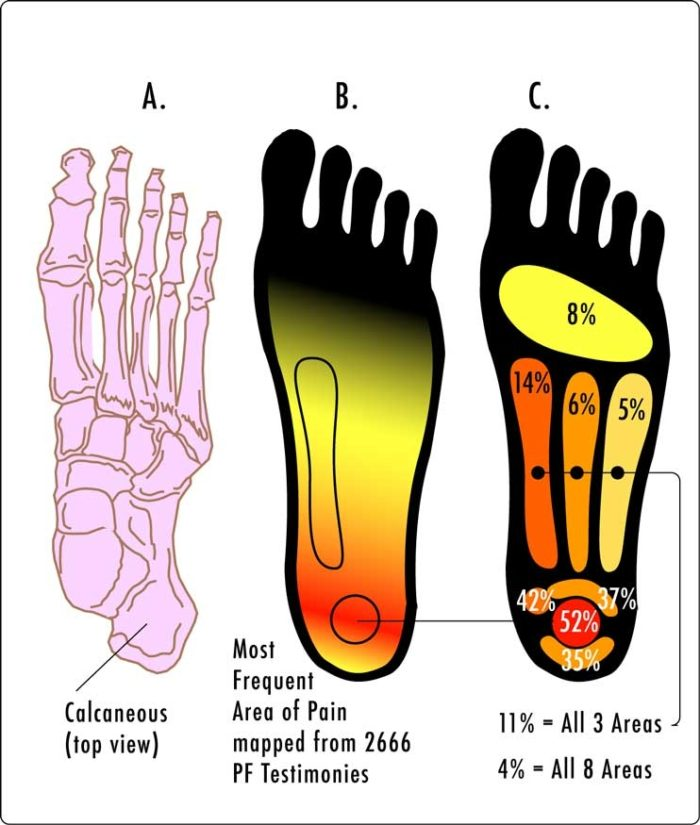 Plantar fasciitis areas on sole of foot
