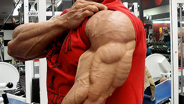 Image of Tricep