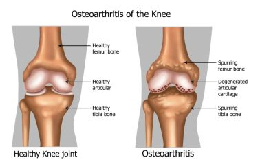 Image result for osteoarthritis of the knee images