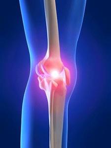 kettlebells for knee pain