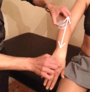 Longitudinal Technique