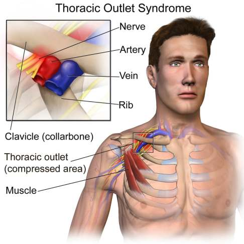 Thoracic Outlet Diagram