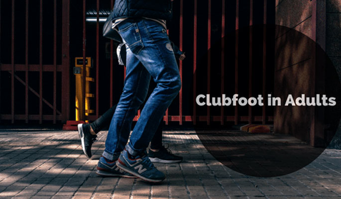 Club Foot Treatment at Physician Partners Of America