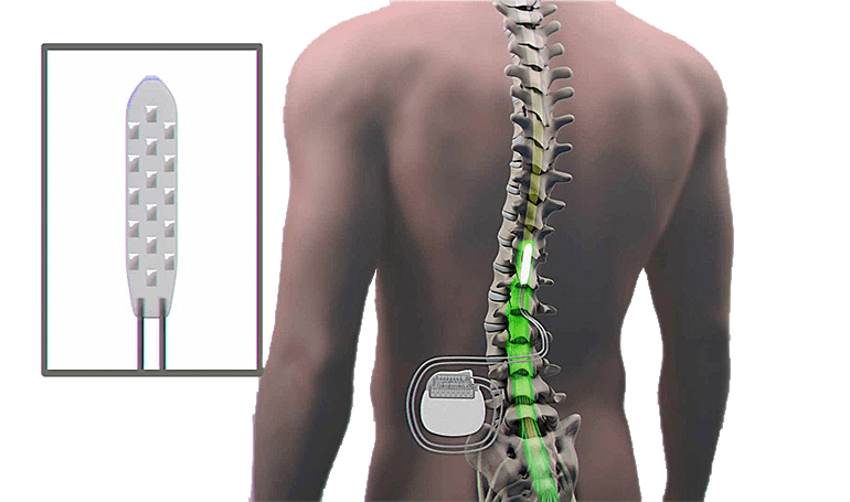 cost of spinal cord stimulator