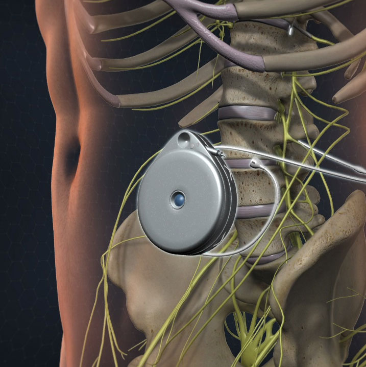 Morphine Pump Implants to deliver morphine directly to the spinal fluid