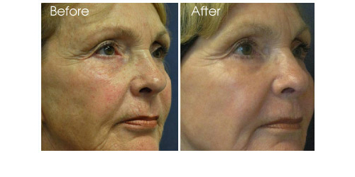 Physicians Laser Center Laser Hair Removal