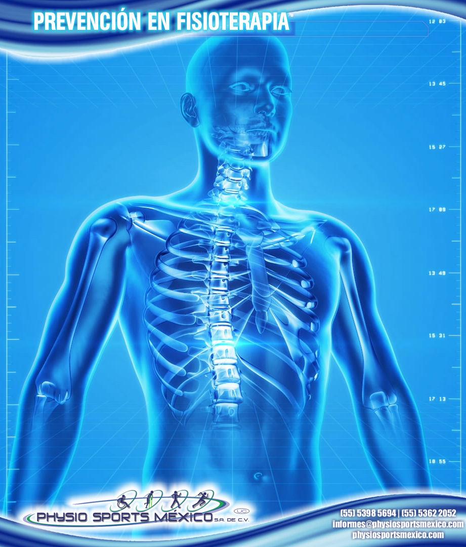 Prevención en fisioterapia Physio Sports Mexico.