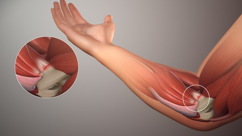 illustration of the inside of a human elbow