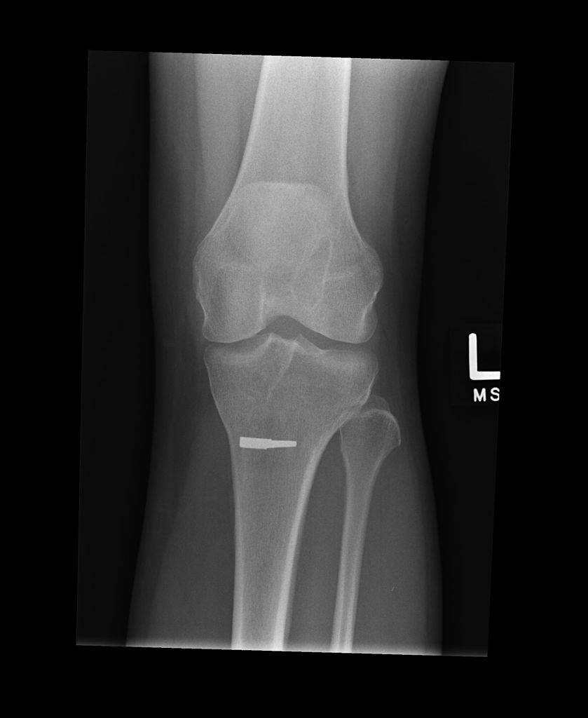 X RAY of a knee