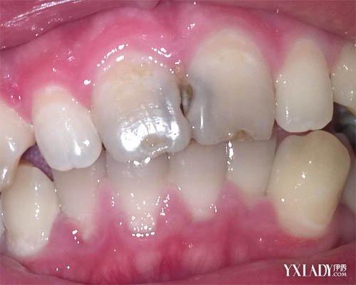 門牙蛀牙變黑怎麼辦? 儘早補牙為最佳方法 - 色彩地帶