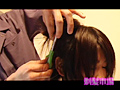 Surrendering baldness