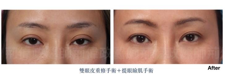 雙眼皮、眼整形權威、提眼瞼肌、眼瞼肌無力、眼整形推薦.jpeg