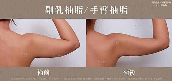 手臂抽脂-副乳抽脂-BA-局-0421006 (3).jpg
