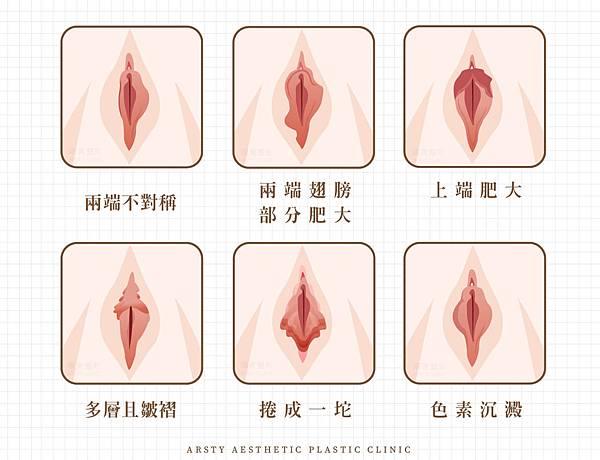 私密處美型手術.jpg