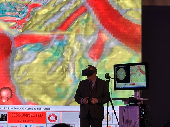 HTC VIVE 開發者峰會:虛擬實境在腦神經外科中的應用(Moty Avisar) IMG_0552