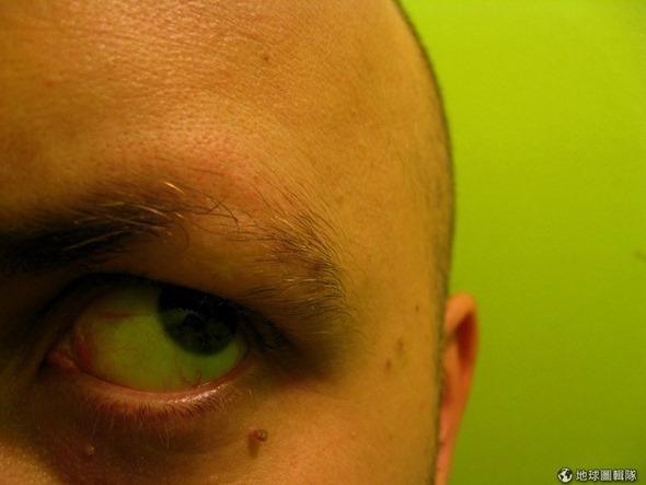 [早安! 地球] 鬼剃頭落髮有救! 美學者用脊髓藥物喚回新髮 d0153f305f75c25d