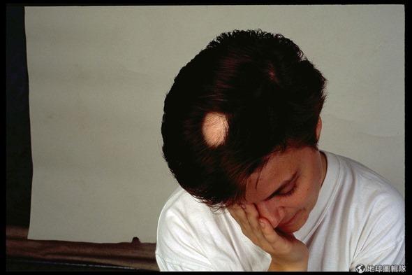 [早安! 地球] 鬼剃頭落髮有救! 美學者用脊髓藥物喚回新髮 d9353f305ee77bd5