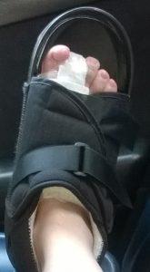 chaussure post-opératoire