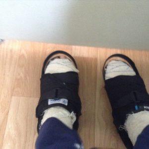 operation hallux valgus deux pieds