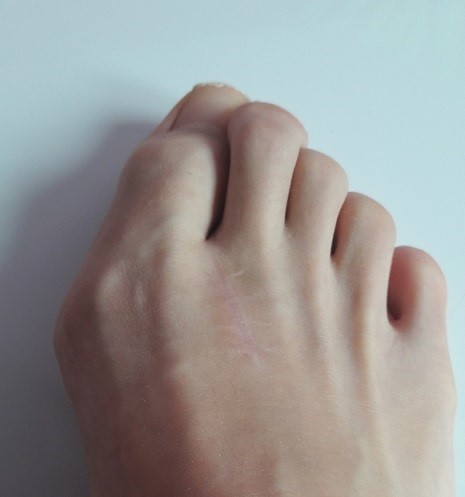 operation-hallux-valgus