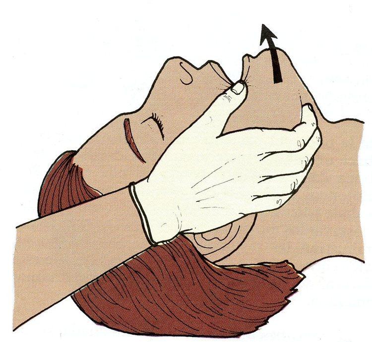 como realizar la maniobra de traccion mandibular