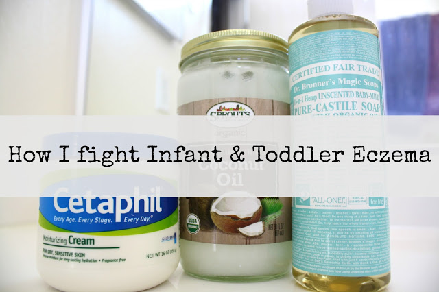 How I fight infant and toddler eczema