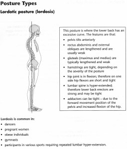 Lordotic Posture