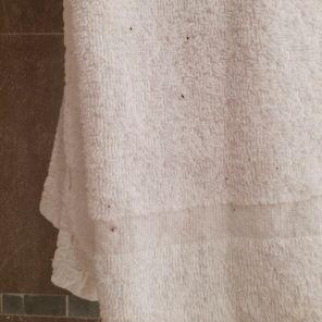 Unidentified fluff on towel