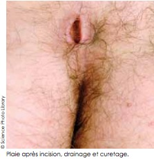 incision kyste pilonidal