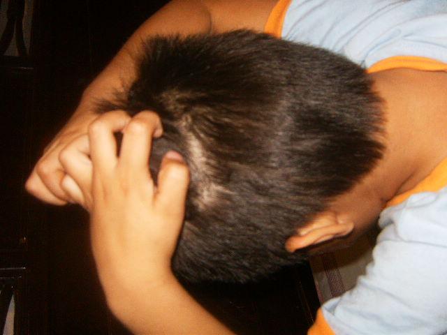 Verrugas y piojos, entre las afecciones de la piel más comunes en los niños; la temporada de calor favorece su proliferación