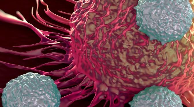 Alertan que hombres son más propensos para desarrollar linfoma