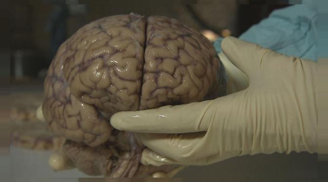 Científicos advierten de potencial ola de lesiones cerebrales relacionadas al COVID-19