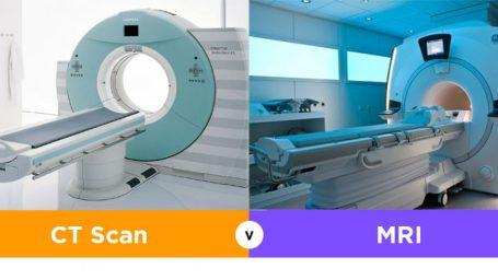 Biaya CT Scan dan MRI