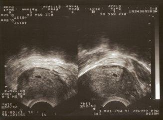 Срок беременности 2 недели: эмбрион и его развитие