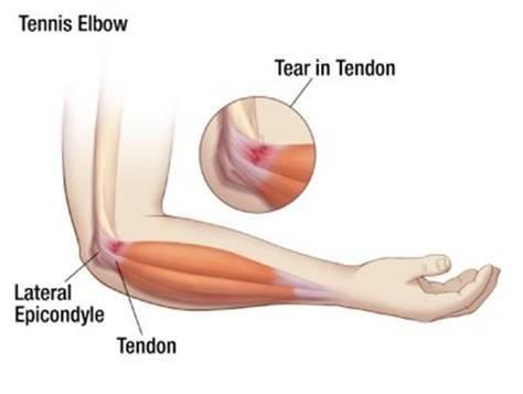 tennis elbow injury table tennis
