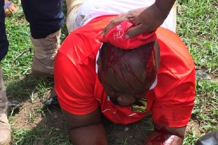 Two Asante Kotoko officials have been hospitalized in Berekum after a fight broke out before their NC Special Cup clash with Berekum Chelsea at the Golden City Park on Sunday.
